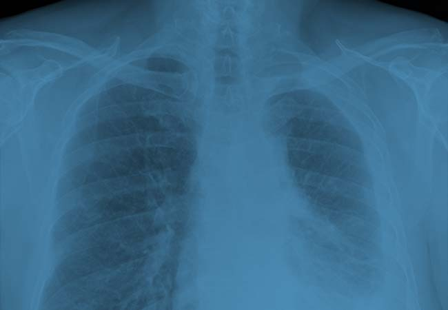x ray of lungs for Asbestosis
